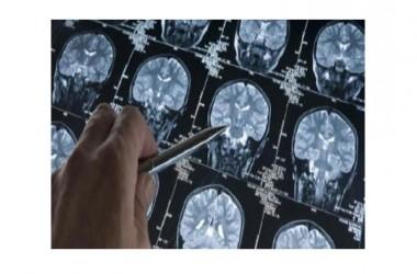 Progresso scientifico: un virus iniettato nel cervello riesce a prevenire il morbo di Alzheimer.