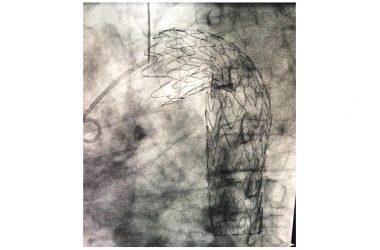 """Azienda ospedaliera """"Sant'Anna e San Sebastiano"""". Effettuate due procedure ibride, a poche settimane di distanza l'una dall'altra, per il trattamento di gravi patologie dell'arco aortico."""
